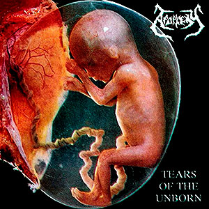 APOPLEXY - Tears of the Unborn