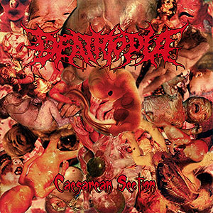 DEATHTOPIA - Caesarean Section